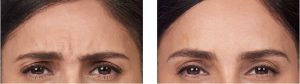botox wrinkles